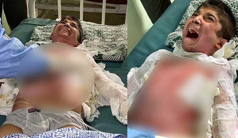 Kimyasal silahla yaralandığından şüphelenilen çocuğun tedavisi Erbil'de yapılacak