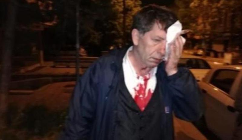 Yeniçağ yazarı evinin önünde saldırıya uğradı